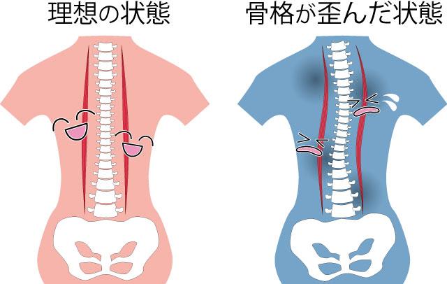 骨格が歪んだ状態のイメージ