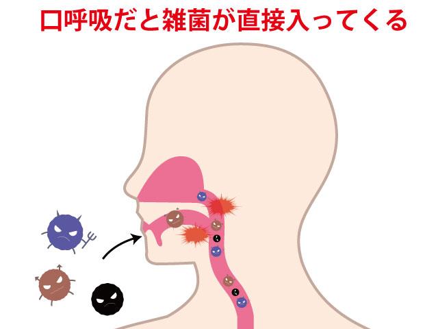 口呼吸だと雑菌が直接入ってくる