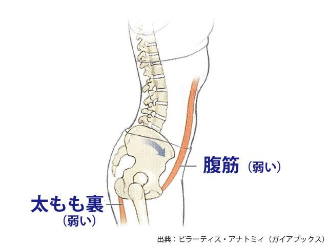 反り腰の原因となる筋肉