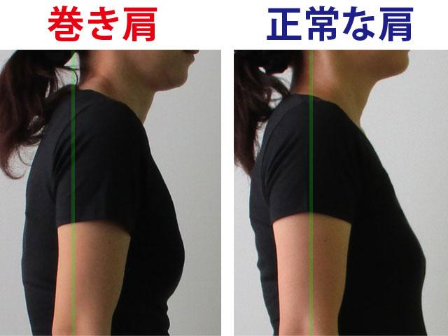 巻き肩と正常な肩