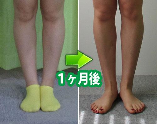 O脚改善の事例