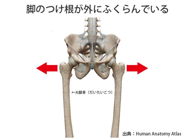 大腿骨が外にふくらんでいる